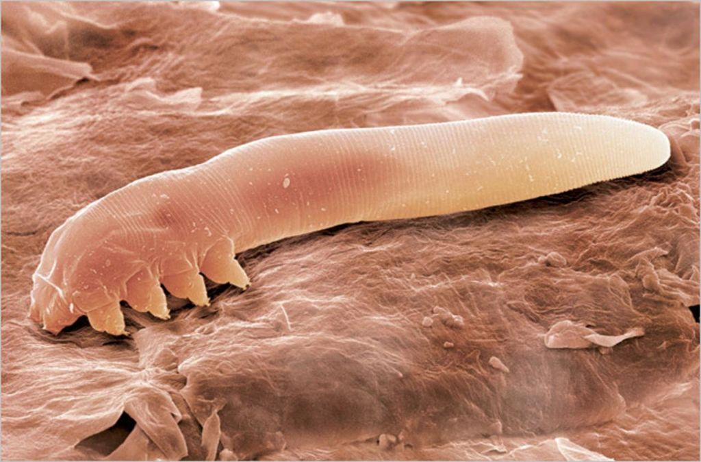 Подкожный клещ демодекс под микроскопом