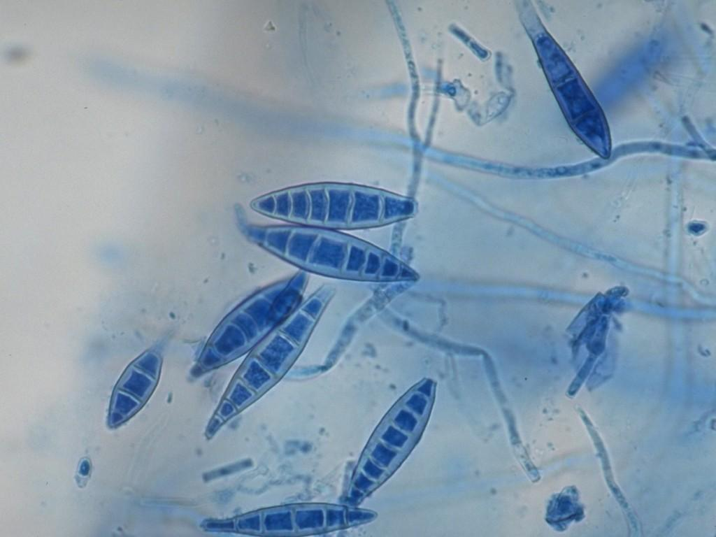Грибок микроспорум Канис