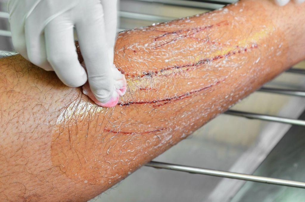 Местные антибактериальные средства помогают облегчить последствия царапин
