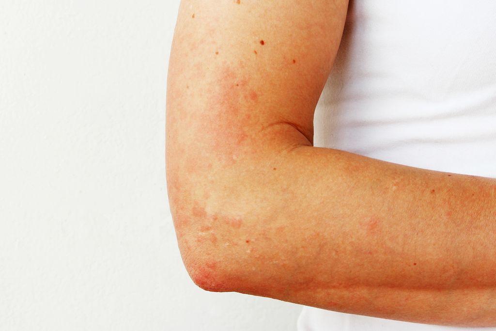 В большинстве случаев аллергия является наследственным заболеванием