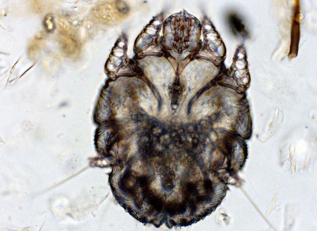 Чесоточный клещ(Sarcoptes scabiei)